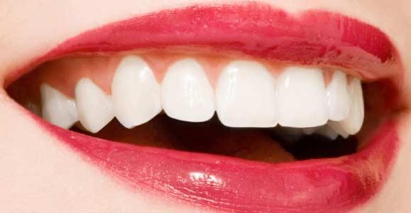 Купить в москве отбеливатель для зубов